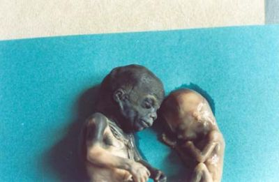 Bodies of 2 aborted babies